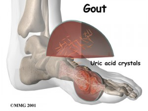 gout remedy report review